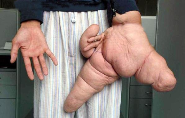 elephantiasis worms Weirdest Diseases (Rare and Strange)